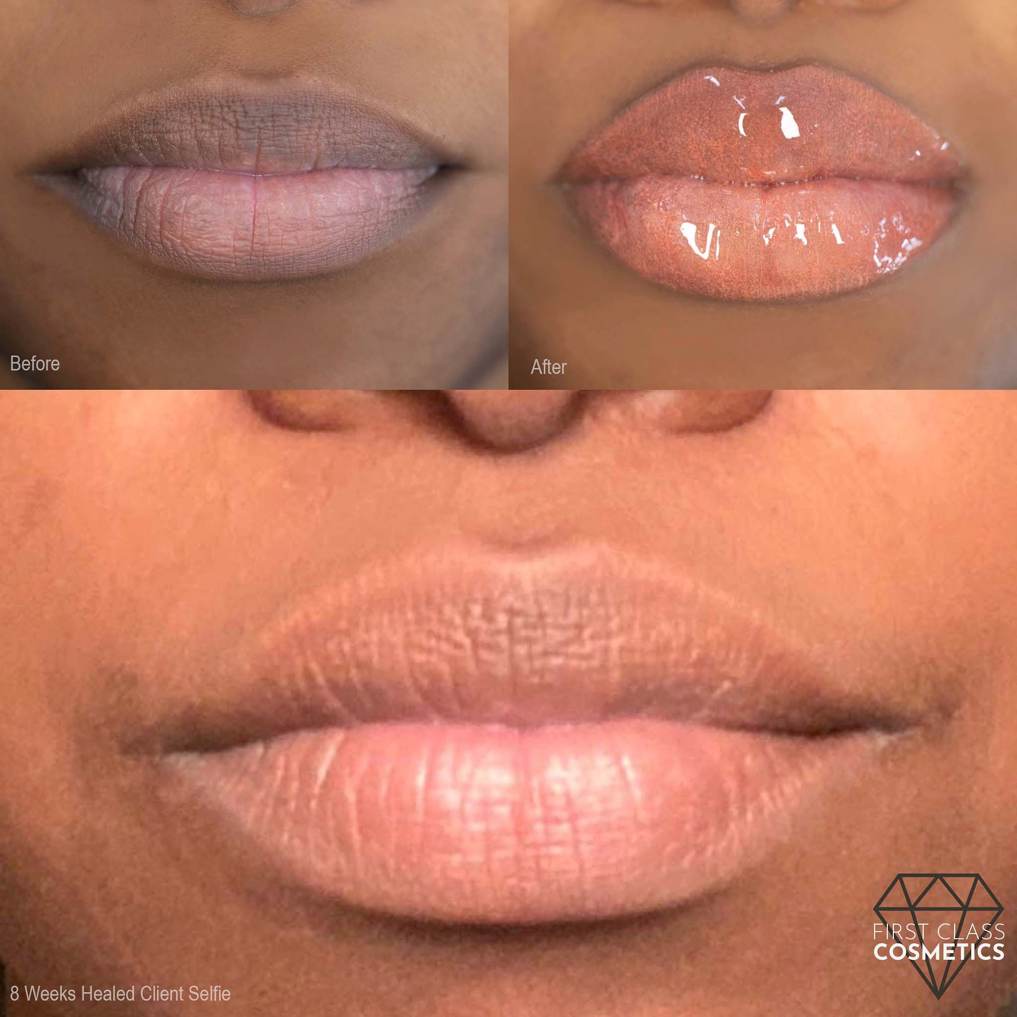 Lip-blush-cosmetic-tattoos